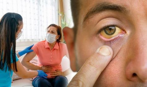 Pancreatic cancer: Subtle skin & eye changes that may be early warning of 'silent killer'
