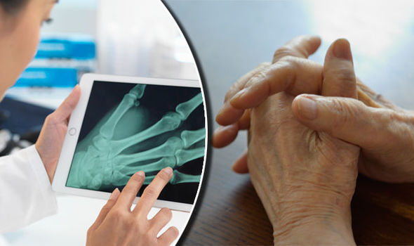 Arthritis symptoms: Numbness and tinging in your hands early sign ...