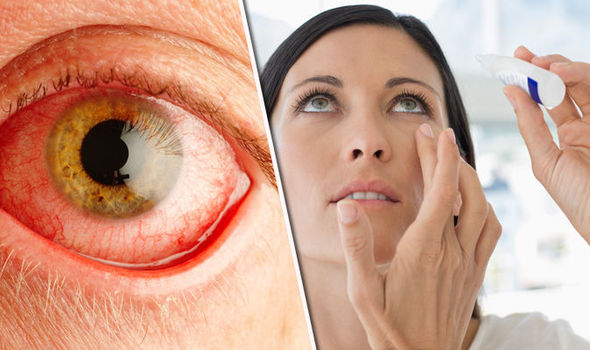Expert warns red and bloodshot eyes could be a warning sign of eye ...
