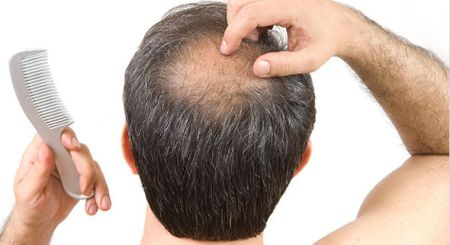 Hair Transplant Is Complete Solution For Problem Of Baldness