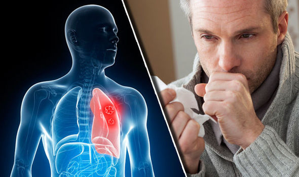 Lung cancer symptoms: Coughing up red or pink phlegm could be a ...