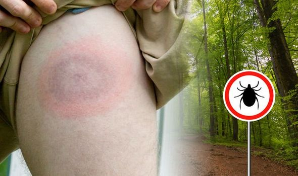Lyme disease: Top tips for spotting early signs of the condition ...
