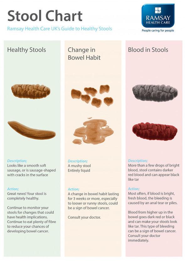 Bowel cancer symptoms: Should poo sink or float? What a ...