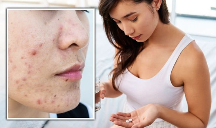 Best supplements for skin: Zinc linked to helping acne, psoriasis and rosacea