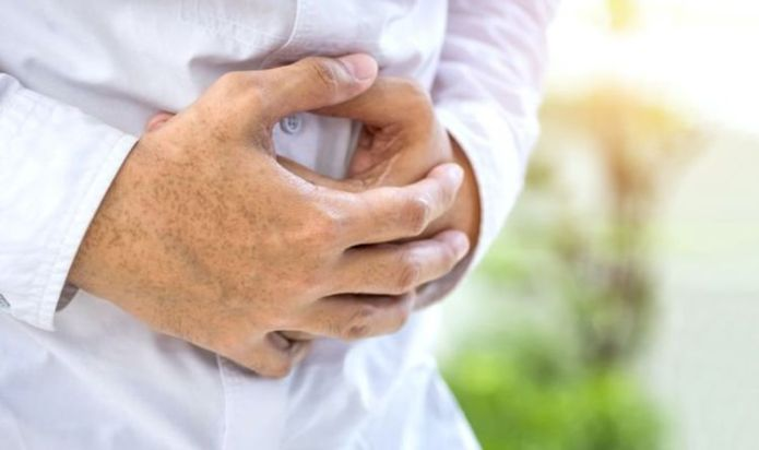 Is bowel cancer the same as colon cancer?