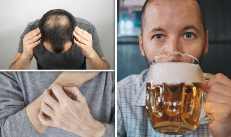 Alcohol-related liver disease symptoms: Three signs of the condition and when to seek help