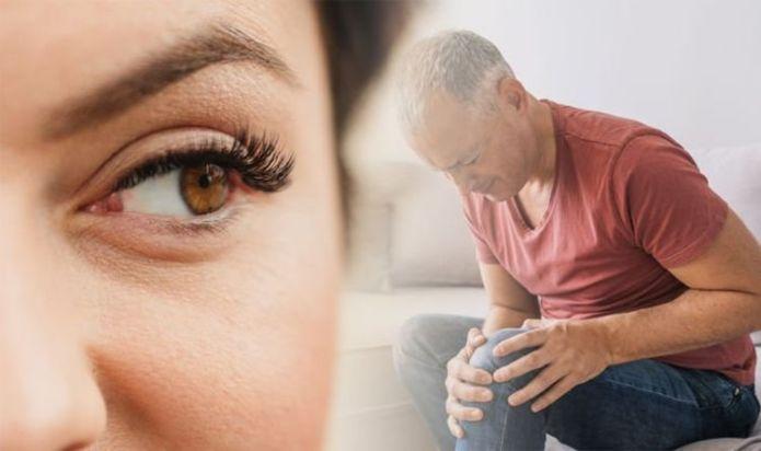 Arthritis symptoms: Three signs in your eyes that could signal rheumatoid arthritis