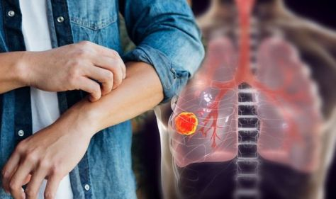 Lung cancer: Lesser-known sign of disease is a painful skin condition warning of your risk