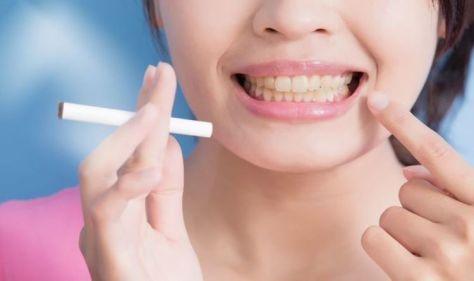 Smoker's teeth: 5 ways smoking impacts your teeth