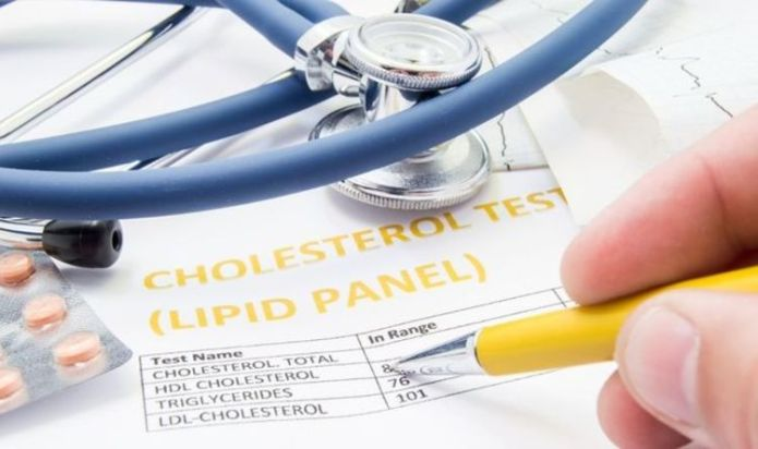 High cholesterol symptoms: What are the signs of high cholesterol?