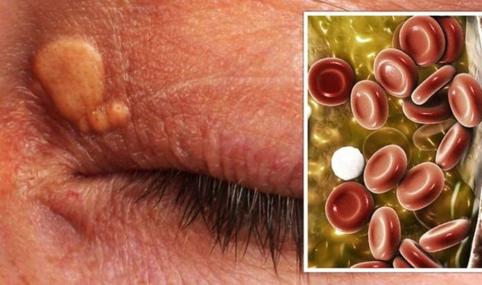 High cholesterol symptoms: The 'minor growths' on your face that indicate high levels