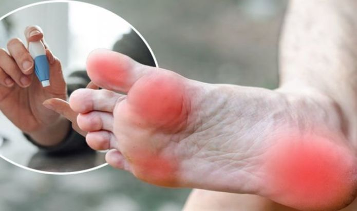 Diabetes type 2: The sign of blood sugar in your feet that could lead to amputation