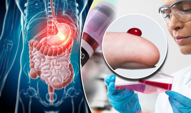 Irritable Bowel Syndrome Breakthrough As Experts Reveal This Could Be Causing Ibs