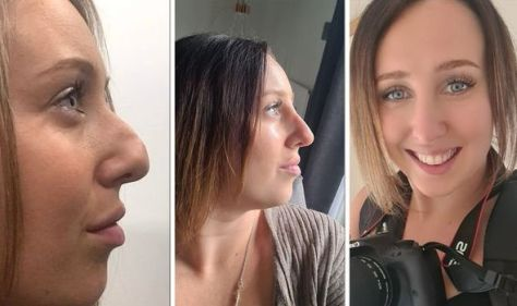Woman nose transformation made her 'burst into tears'- 'I worked with a hand over my nose'