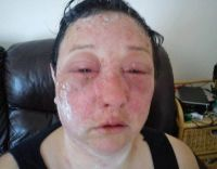 Horror hair dye allergic reaction leaves woman's life in ...