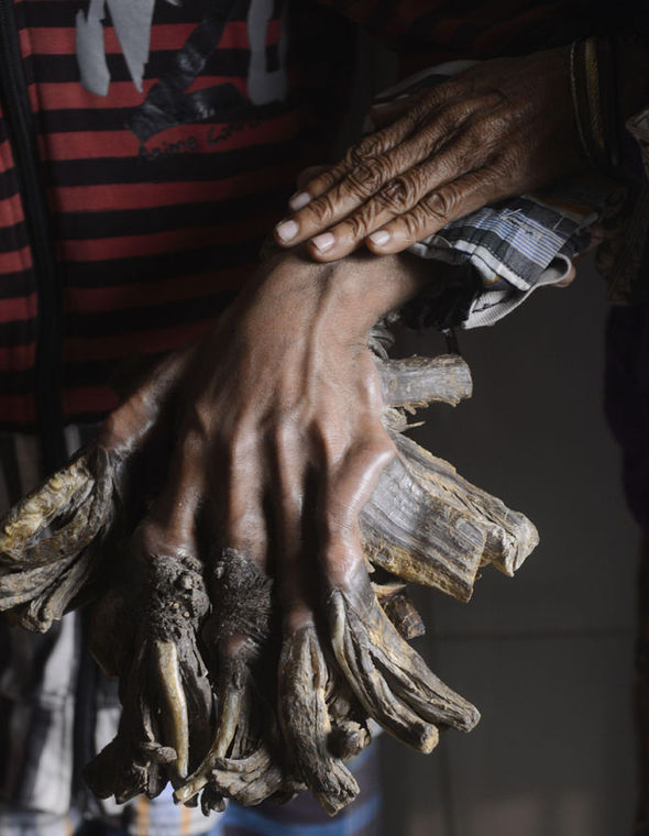 Tree man with rare disease has roots growing from hands