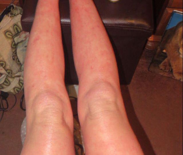 Legs With Rash