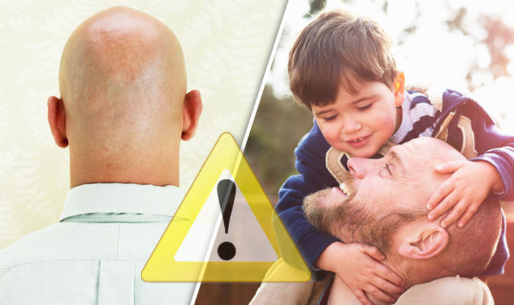 Hair loss myth BUSTED Will YOU have a bald head because your dad did  Life  Life  Style