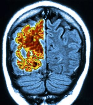 Alzheimer's CURE: Tiny human brains grown in lab could hold key to wipe out disease | Science
