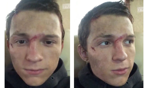 Avengers star Tom Holland shows off his broken nose