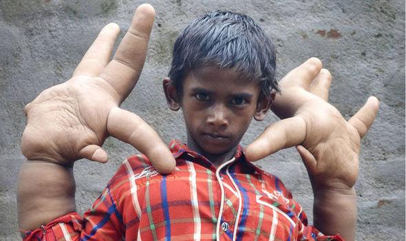 world s biggest hands