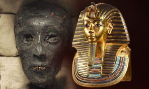 Tutankhamun ancient Egyptians having Marfan Disorder