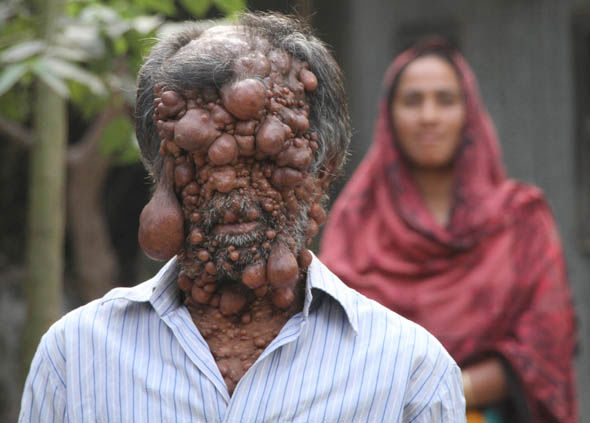 Shadot Hossain suffers from tumours all over his body