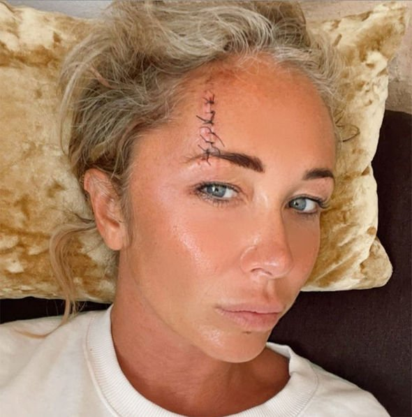Jenny Frost showcased a painful head injury on Instagram today