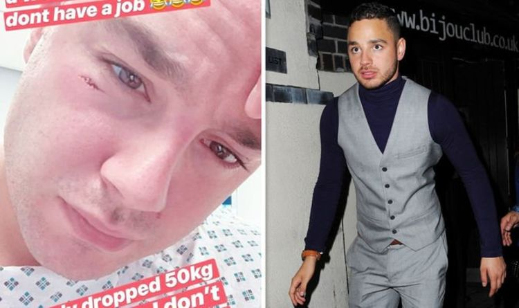 1127971 Adam Thomas: Emmerdale star, 30, rushed to hospital after dropping gym weight on his face