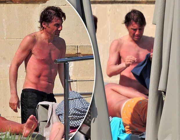 Antonio-Conte-sunburn-Chelsea-pool