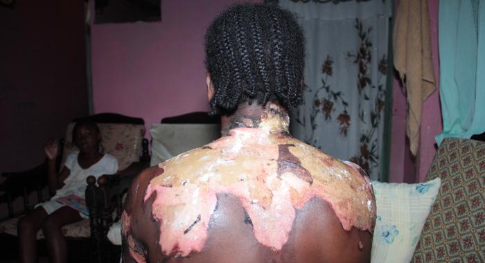 0413 Burn Victim