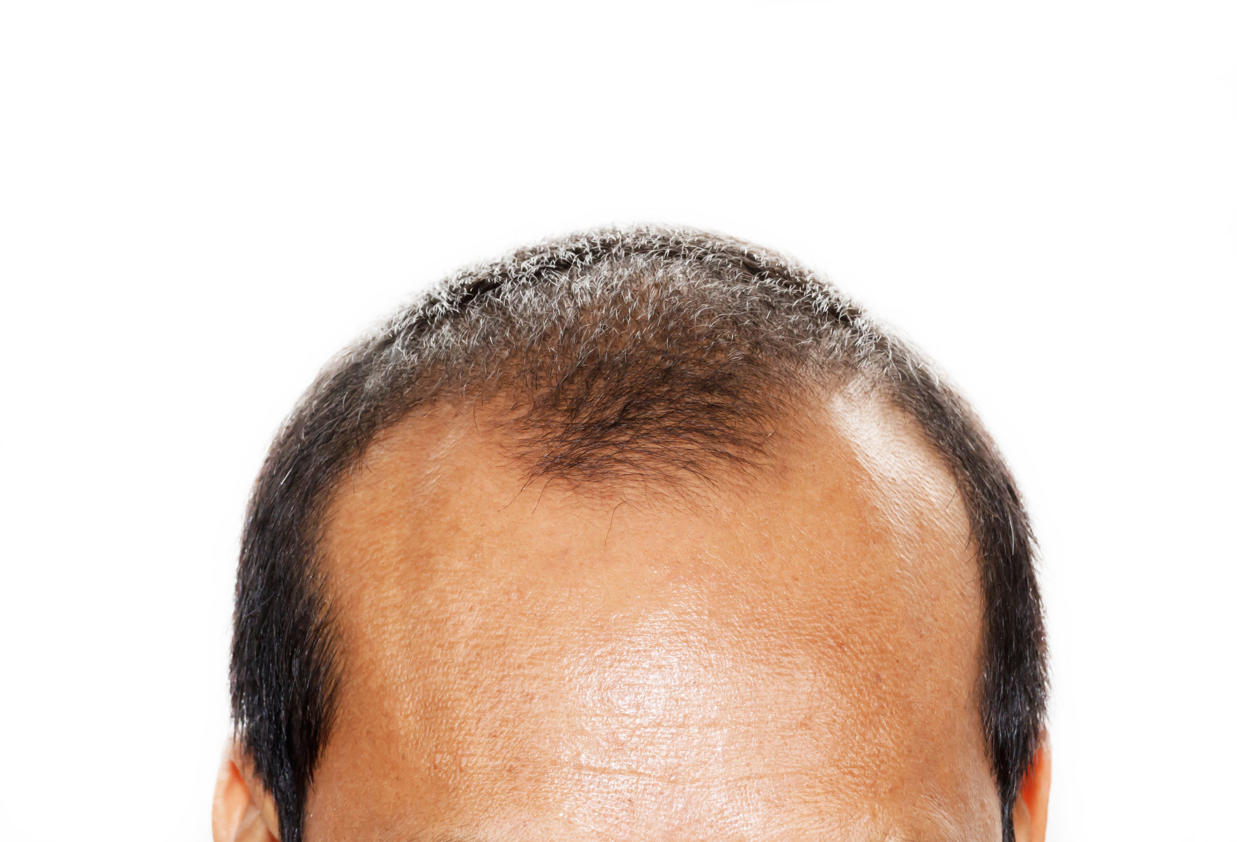 Mature Hairline Vs Balding The Quick Facts