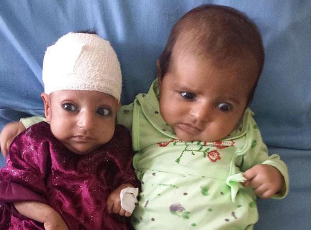 Asree-Gul Dünya İki Başlı Çocuğu Konuşuyor