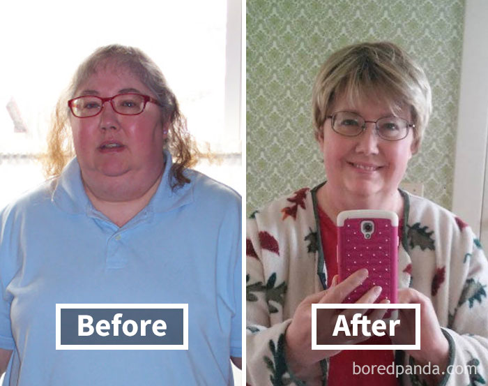 before-after-weight-loss-face-transformation-32-5a1d0f397384a__700