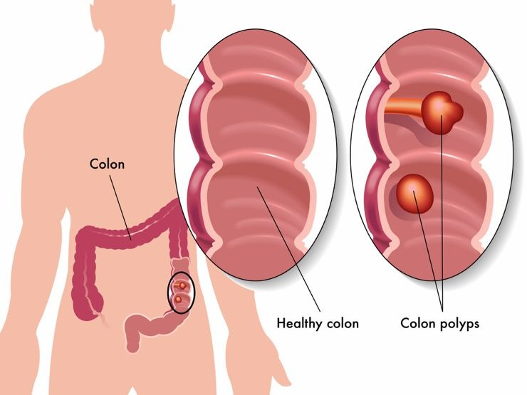 Blood in Stool Causes Story