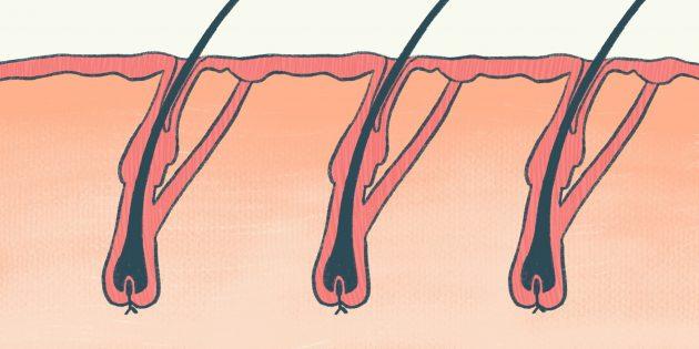 наращивание волос: волосяные луковицы
