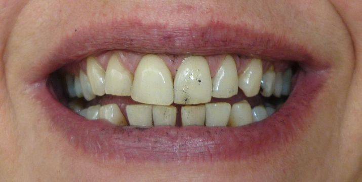 Algunos alimentos manchan los dientes. Foto de Blogspot.