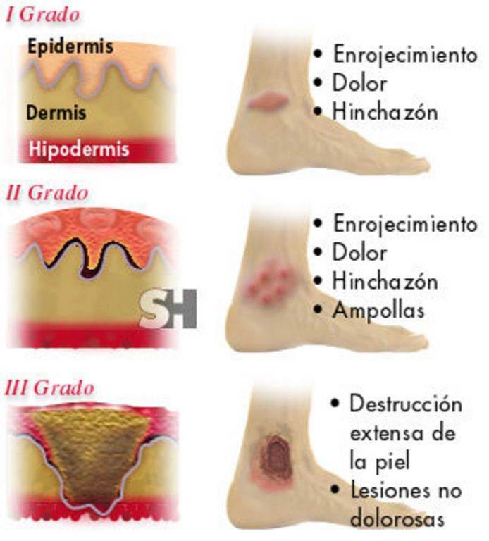 Infografía de demedicina.com