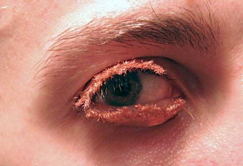 Eyelidhid 20070910
