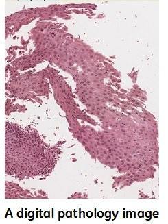 digital-pathology-image.jpg