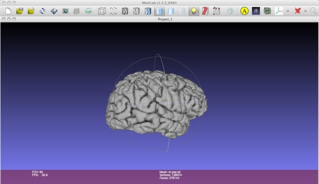How-To: 3D Print a Model of your Brain | Make: