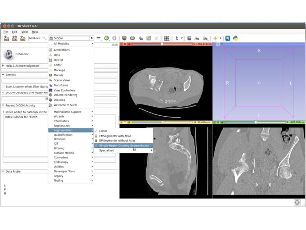 3D Print Your Medical Scan