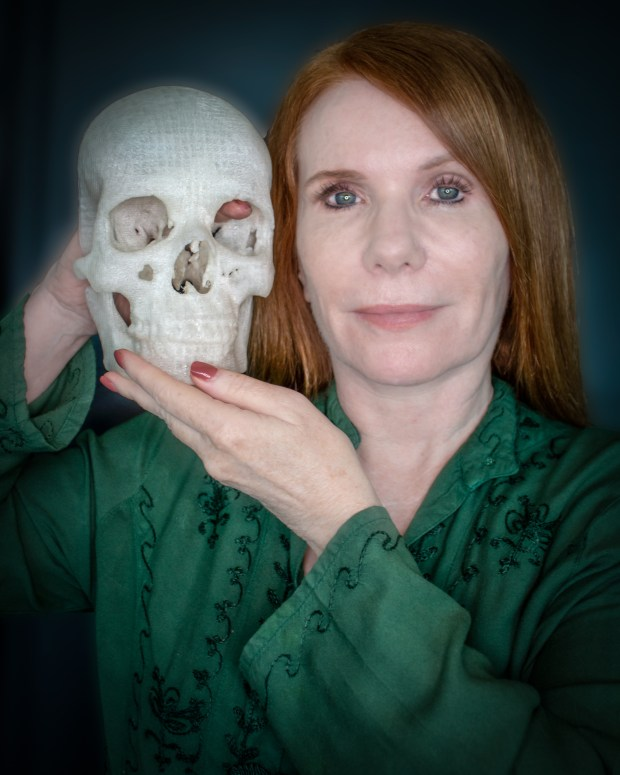 Pamela Shavaun Scott, with a 3D printed copy of her own skull. Her right index finger is indicating the location of the meningioma she had removed.