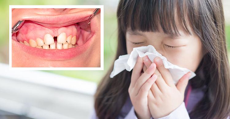 張口呼吸是禍首!鼻過敏兒這些併發癥不可不慎 – 媽媽經 專屬於媽媽的網站