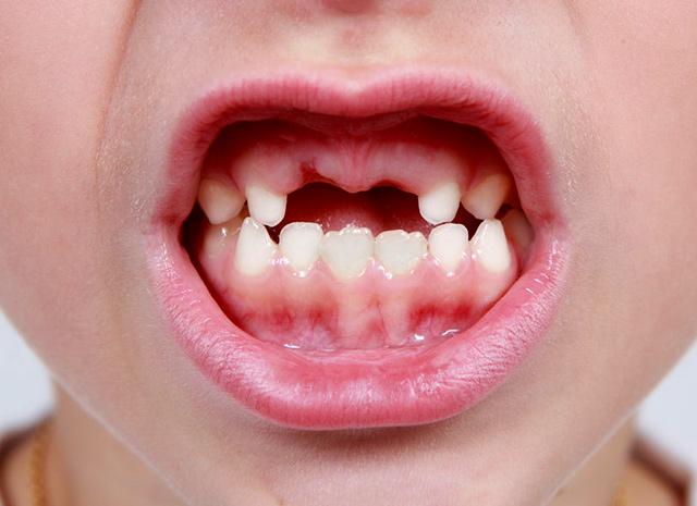 換牙小迷思!乳牙先拔能讓恆牙長得更好嗎? – 媽媽經|專屬於媽媽的網站
