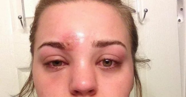 Pimple staph infection Katie thought it was a pimple It