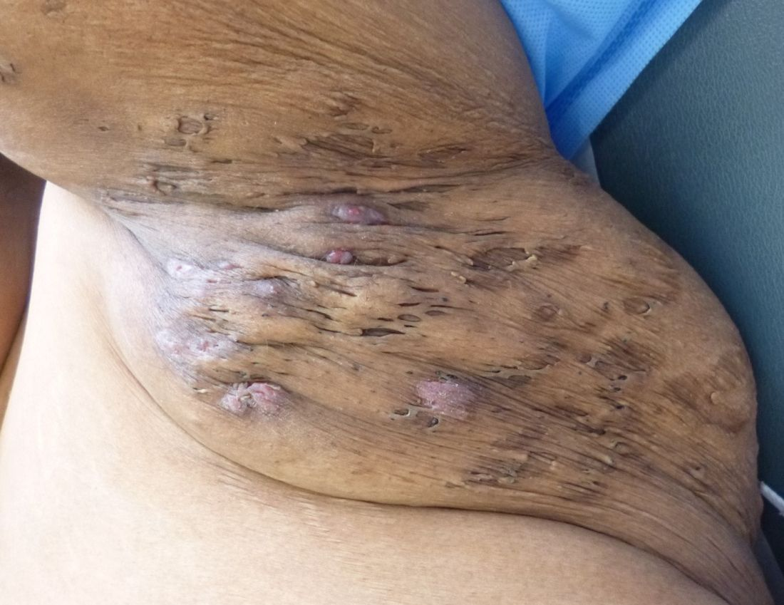 Image result for Hidradenitis Suppurativa Treatment