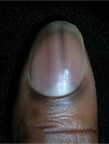 Black Line on the Nail: Causes, Treatments, Pictures and More