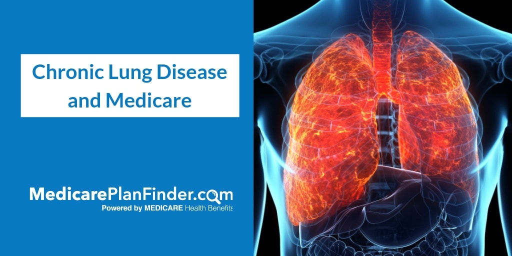 Chronic Lung Disease Medicare Coverage | Medicare Plan Finder