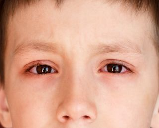 Pink Eye (Conjunctivitis): Causes, Symptoms & Treatment | Live Science